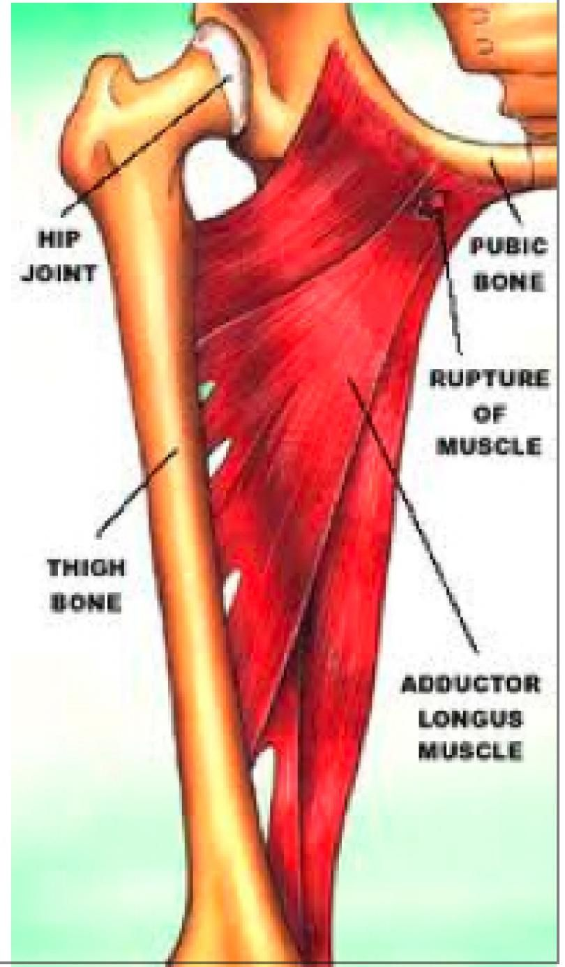 Hip Abductor Tendon Tear