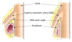 SMA Syndrome Diagram | SMA | Pinterest | Best Superior
