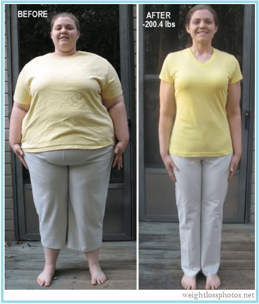 Image result for weight loss before and after pics