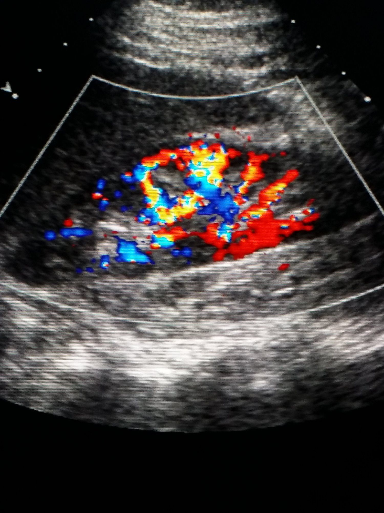 Doppler Ultrasound On This Ultrasound The Color Shows Blood Flow In The Kidney