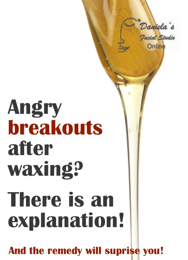 Ever Break Out In Tiny Pimples A Few Days After Wax Follow The Link Ingrown Hairacne