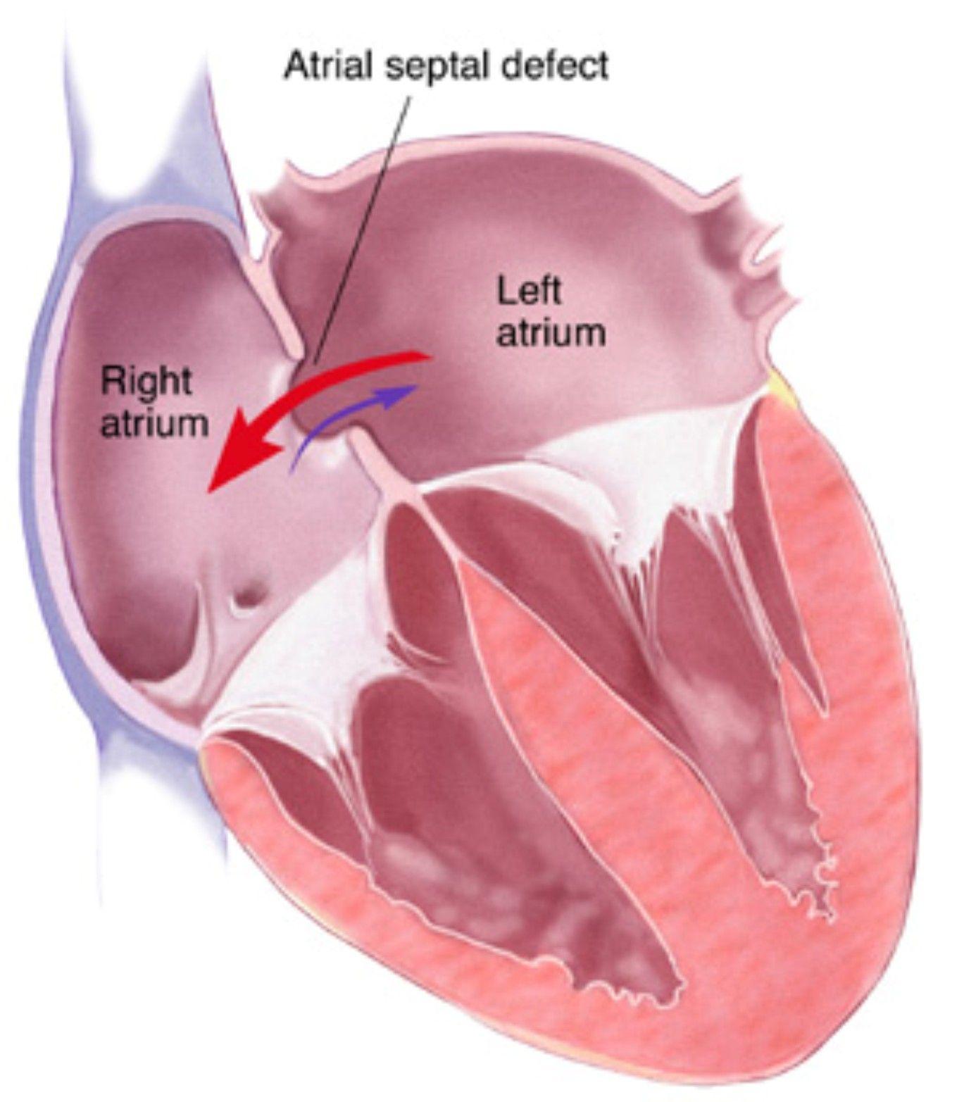 Atrial Septal Defect    Non Cyanotic Hattie