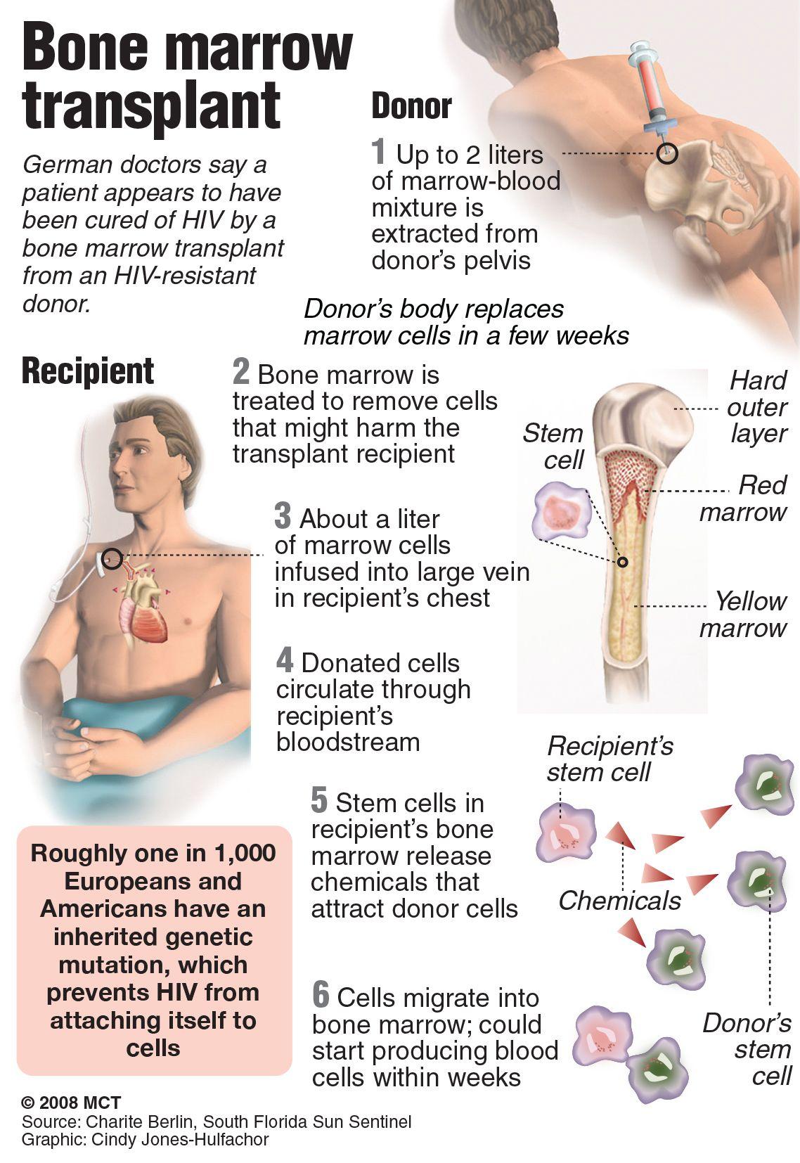bone marrow cell diagram pride victory scooter wiring best transplant in mumbai  credihealth