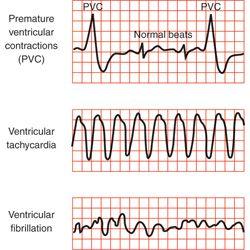 cardiac arrhythmia | Supraventricular Tachycardia ...