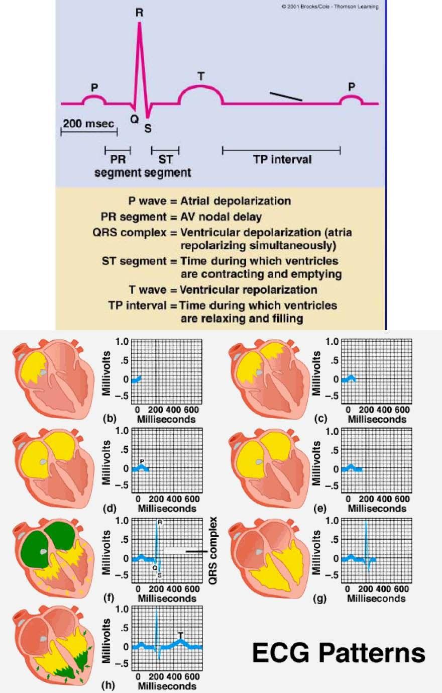 fishbone diagram lab values normal 4 3 mercruiser starter wiring cardiac conduction system ecg - google search | nursing pinterest