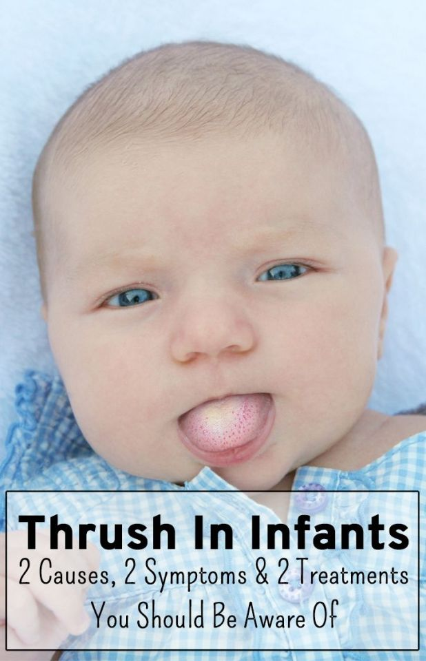 How To Get Rid Of Thrush On Your Tongue Naturally