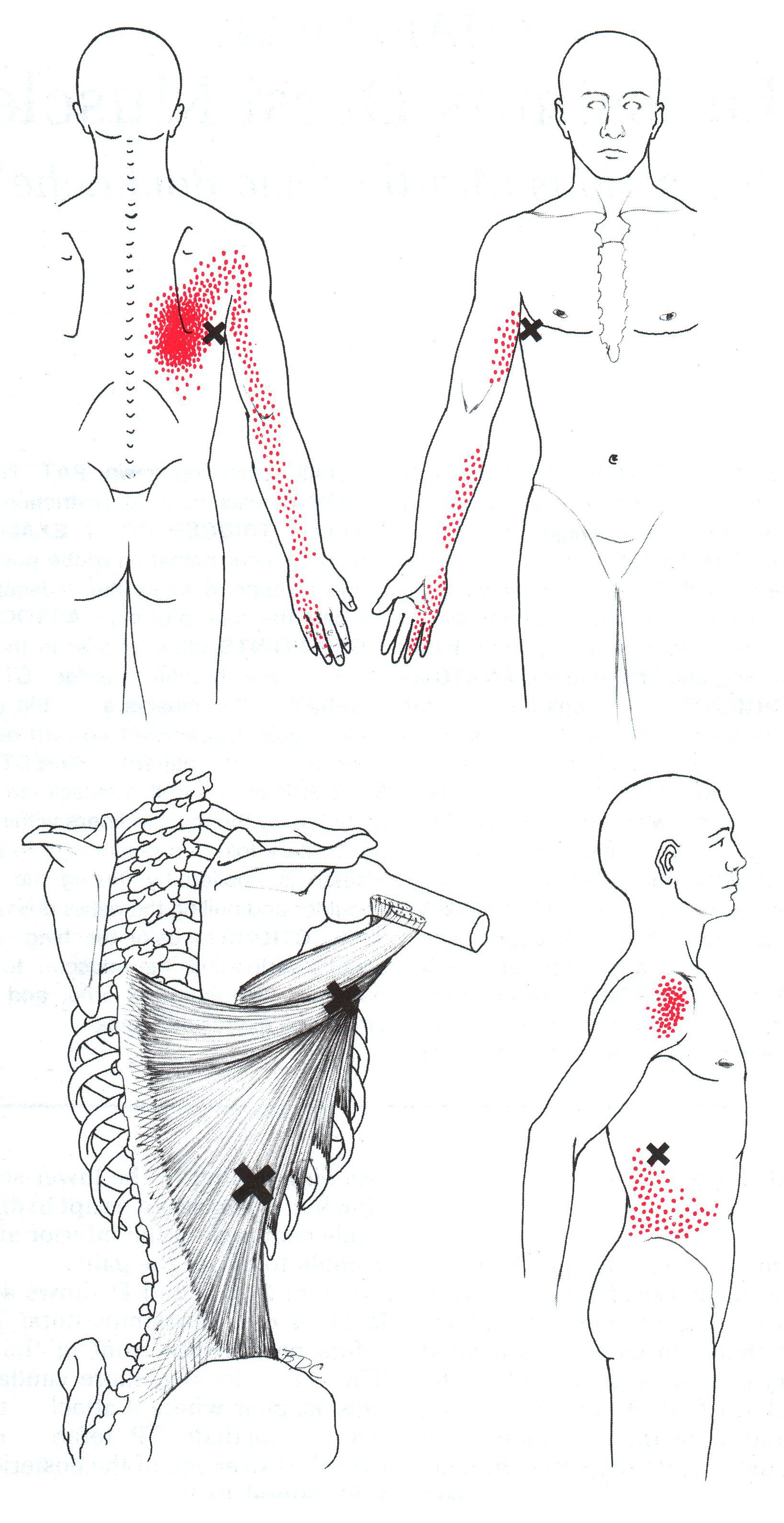 massage technique diagram leviton 3 way switch wiring decora latissimus dorsi the trigger point and referred pain guide