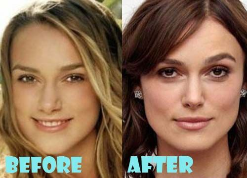 Keira Knightley Lip Injection