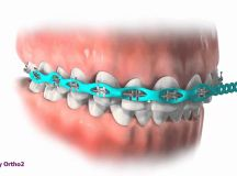 Power chain Power chain is a tool we use in orthodontics ...