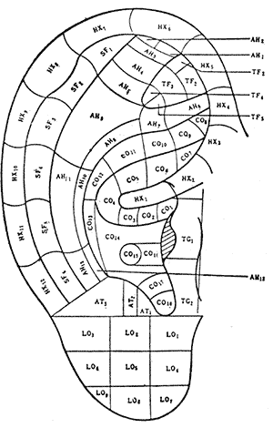 Areas of the ear and their corresponding body parts. Click