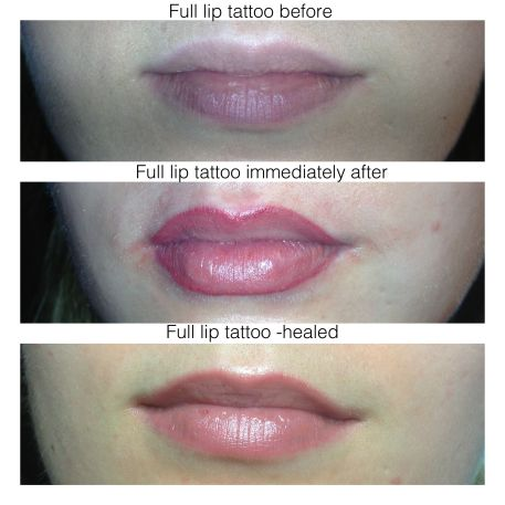 lip liner tattoo, permanent makeup, beauty and laser clinic