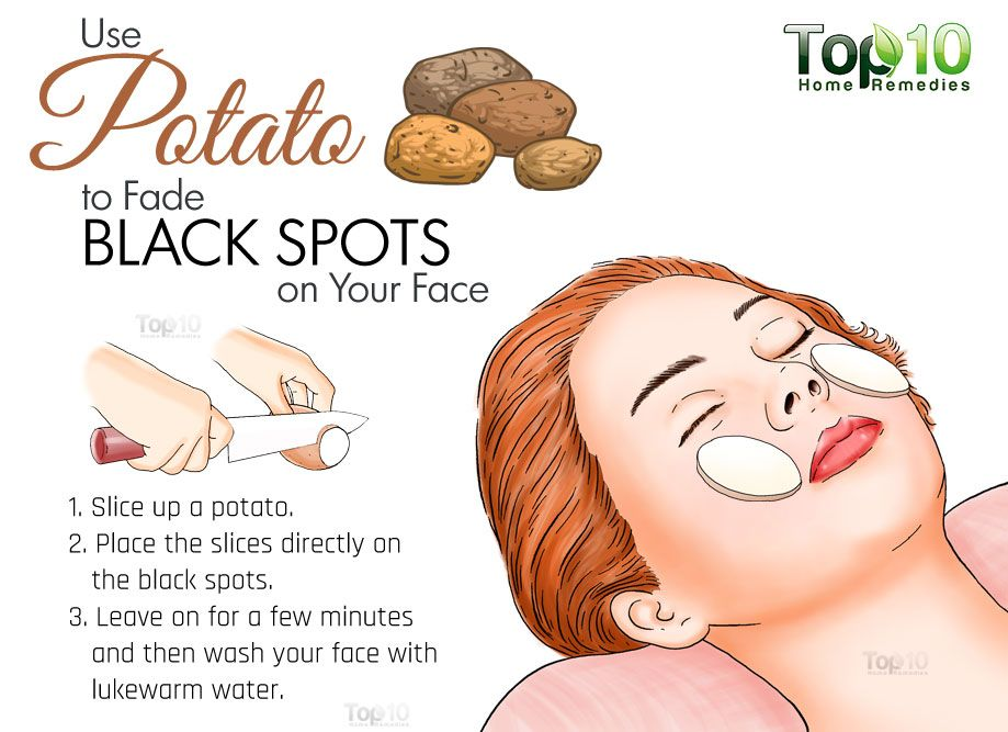 Home remedies for black spots on your face dark spots