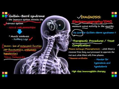 NCLEX Review on Guillain-Barre Syndrome | neuro ...