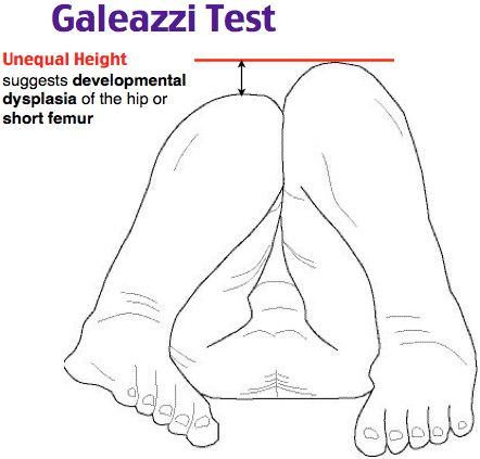 Galeazzi Test. flexing the infant's hips and knees, then