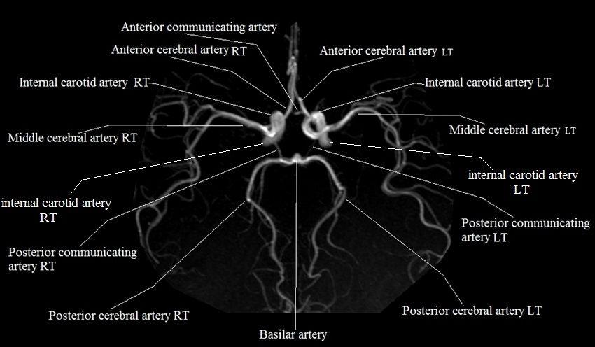 Brain Cross Sectional Anatomy Ct