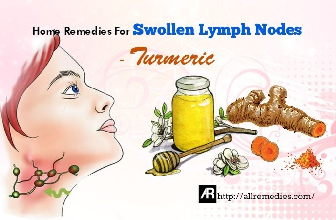 Top 30 At-Home Solutions To Treat Swollen Lymph Nodes In ...