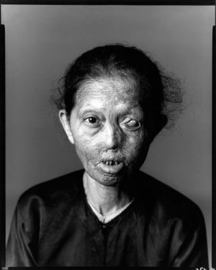 Image result for napalm victims pictures