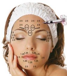 The 25 best Botox injection sites ideas on Pinterest