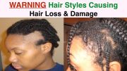 hairstyles cover bald edges