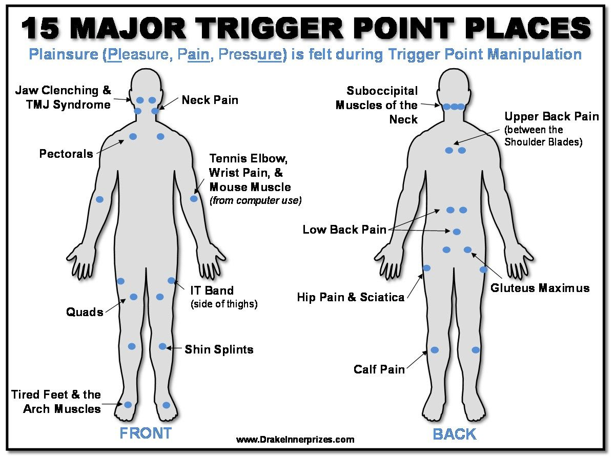 Plainsure How To Deal With Trigger Points