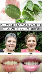 sage - gray hair regains color