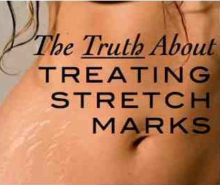 How to treat stretch marks: what works and what DOESN'T ...