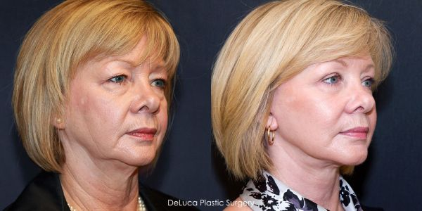 20+ Exercises For Sagging Jowls Pictures and Ideas on Meta Networks
