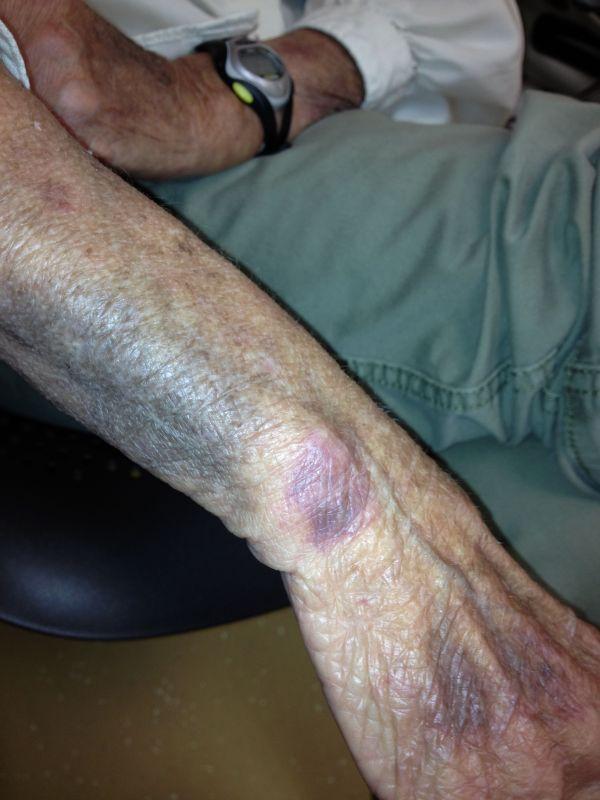 Senile Purpura In Elderly - Year of Clean Water