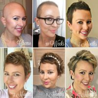 Post Chemo Short Hairstyles | Fade Haircut