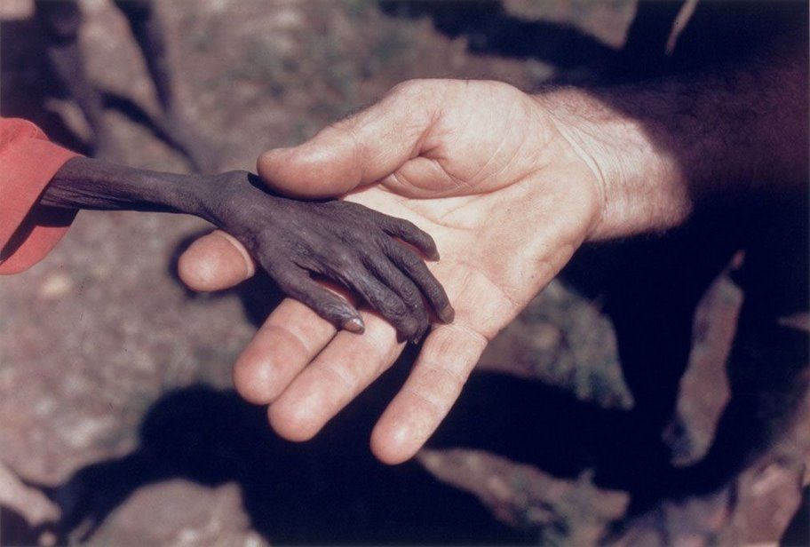 Extremely thin, malnourished dark skinned hand, resting onto of a white person's hand