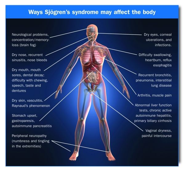 Sjogrens Syndrome Skin