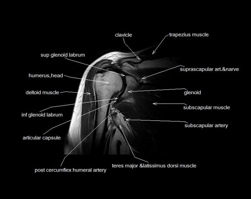 Lujo Spine Mri Anatomy Bandera - Imágenes de Anatomía Humana ...