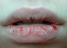 Home Remes In Severe Chapped Lips Treatment