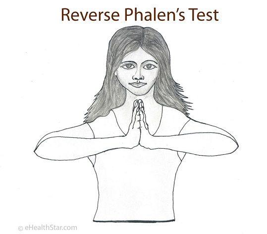Positive reverse Phalen's test speaks for carpal tunnel or