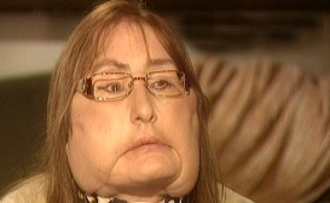 Face Transplant Recipient Connie Culp S Recovery Video