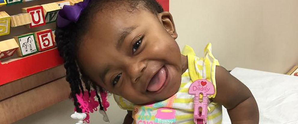 This spunky 3-year-old won't let her condition stop her ...