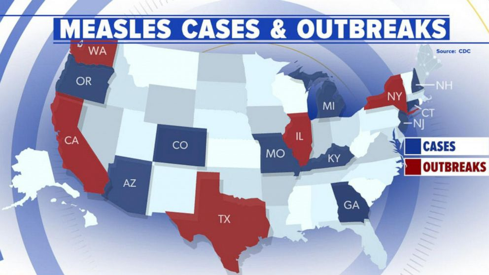 Measles emergency in New York Video - ABC News