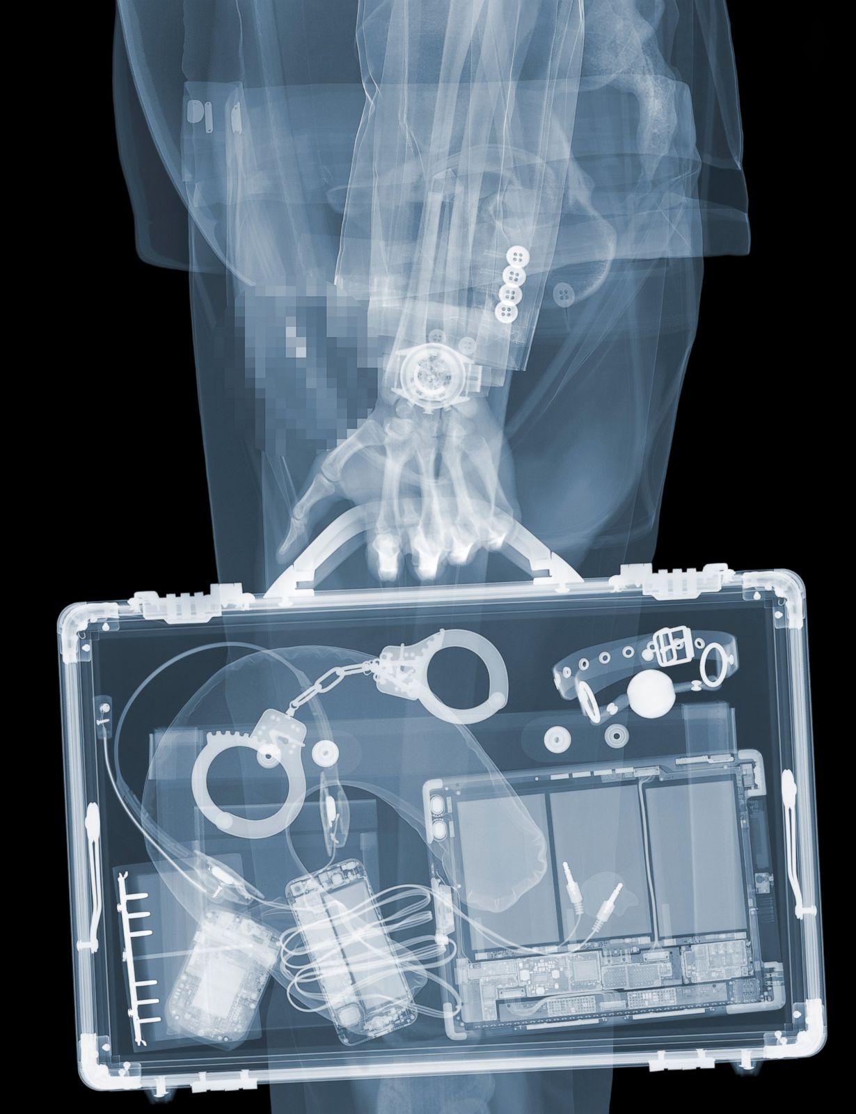 Nick Veasey S X Ray Art Photos Abc News