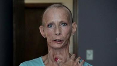 Image result for truth cigarette commercial skin