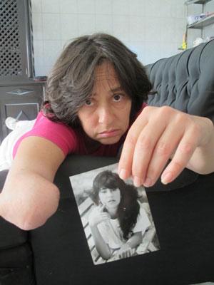 Mulher diz ser vitima de erro medico (Foto: Kleber Tomaz/G1)