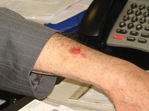 Ferimento que, de acordo com o deputado, foi provocado pelos criminosos por uma chave de fenda, durante assalto (Foto: Raphael Prado/G1)