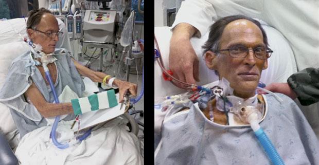 Craig Lewis é o primeiro homem do mundo a viver sem o coração (Foto: Divulgação/Herzliya Films)