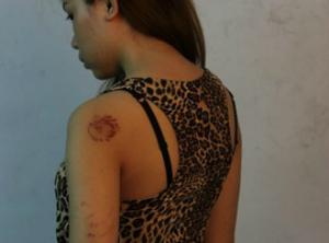 Mulher publicou fotografia mostrando seus machucados (Foto: Reprodução)