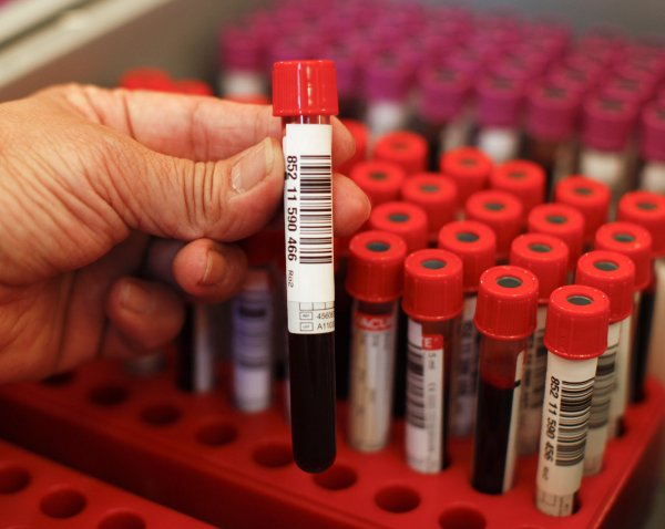 'blood Test Depression' Holds Promise Of
