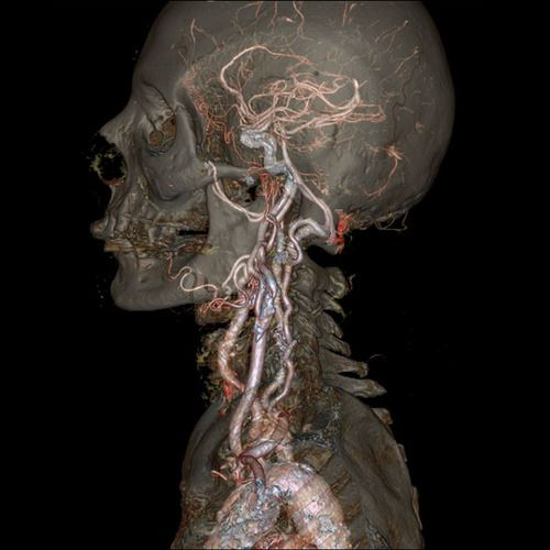 Peer Inside the Human Body With These Amazing Images and GIFs