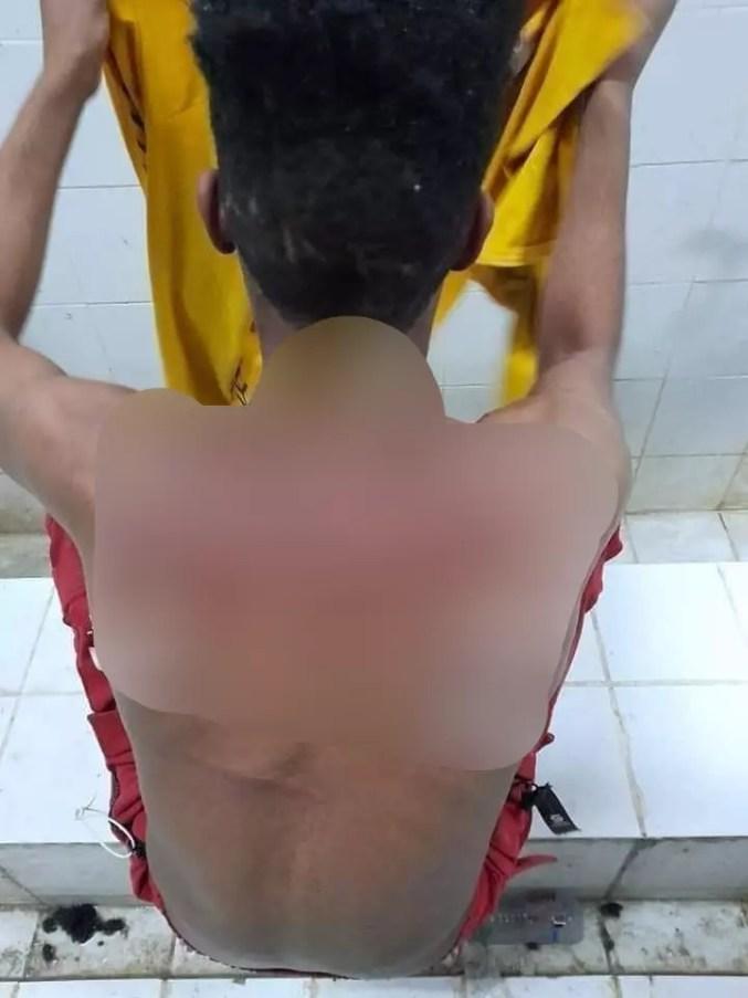 Photo transmise par un détenu en Arabie saoudite. Sur son dos, des marques de coups de martinet. Août 2021.