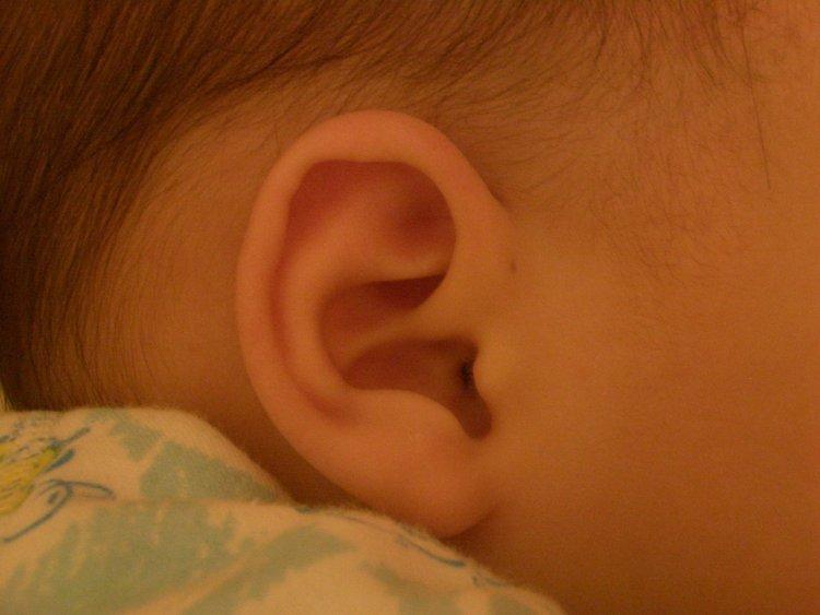 耳朵旁邊的洞?--求助發問-非常婚禮veryWed.com