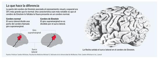 [Cerebro de Einstein]