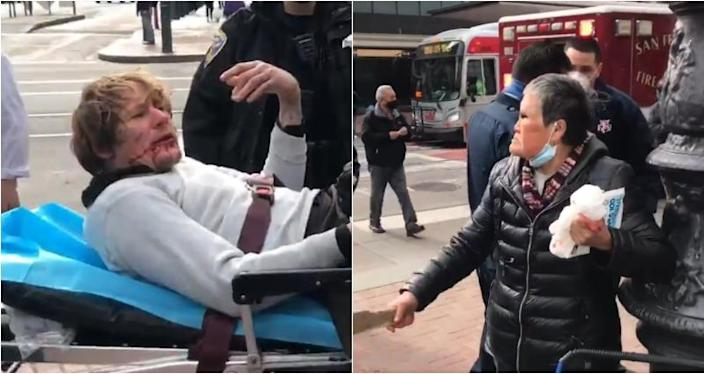 Elderl Asian American woman fights back in another disturbing attack 3/18/21