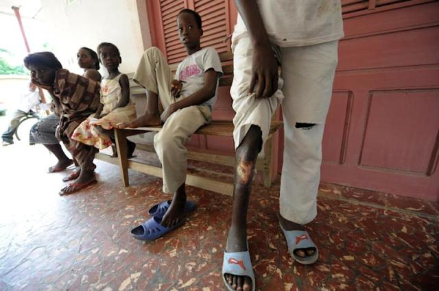 World Health Organisation data showed 2,037 new cases of buruli ulcer reported from 13 nations in 2015, with the majority in West and Central Africa, including Benin, Cameroon and Ghana